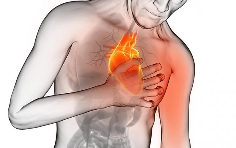 ¿Cómo evitar un infarto?